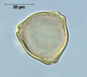 pollenkorrel van een hazelaar (referentiecollectie UGent, schaal 20µm of 0,02mm)